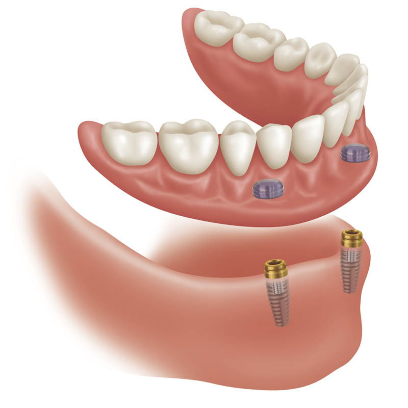 implant-supported -dentures