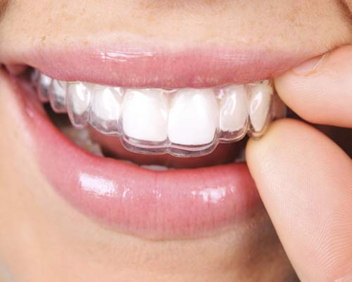 Invisible Braces Treatment in Delhi