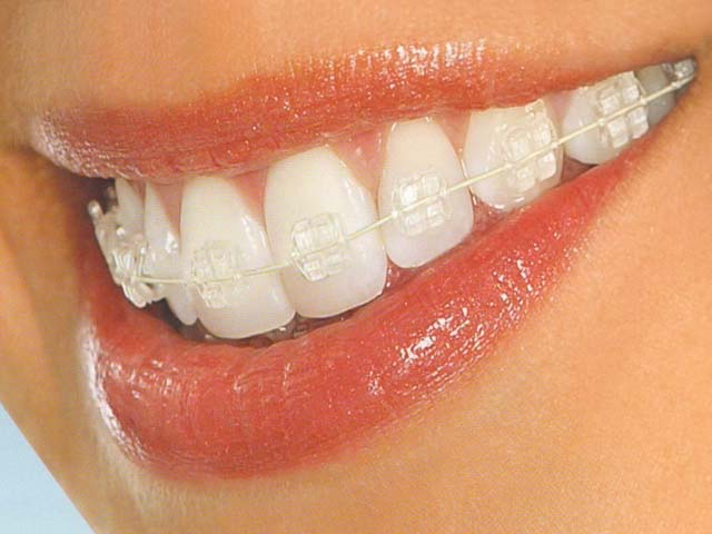 Invisible Clear Braces Treatment in Delhi